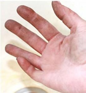 brudna dłoń